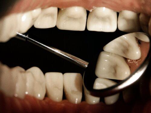 borsta tänderna med kokosolja